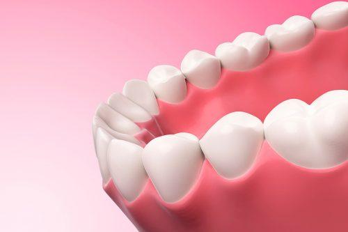 Restorative Dental Services