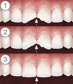 Dental Bonding Steps